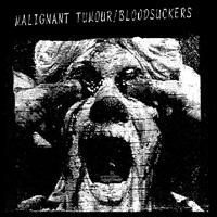 Malignant Tumour